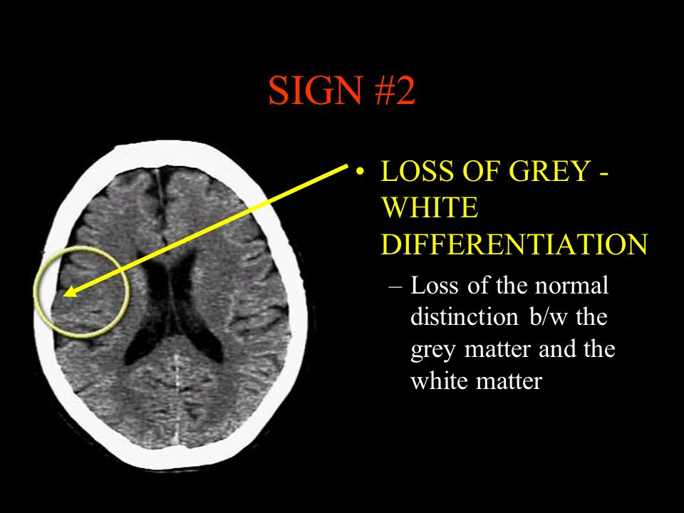 SIGN #2 LOSS OF GREY - WHITE DIFFERENTIATION