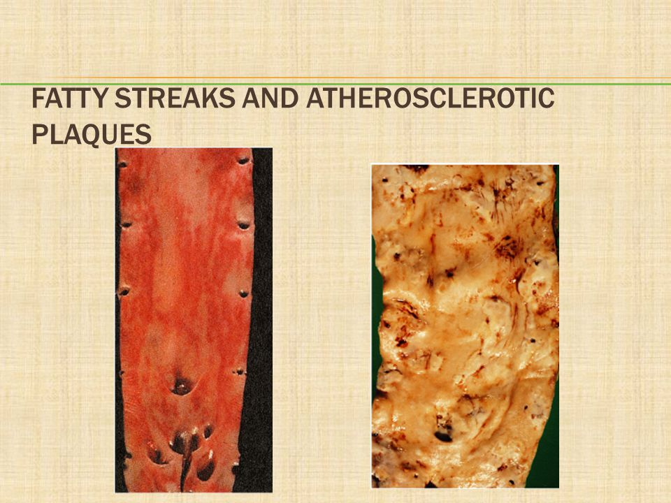 Fatty Streaks and Atherosclerotic Plaques