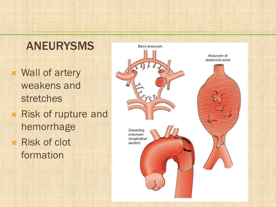 Aneurysms Wall of artery weakens and stretches