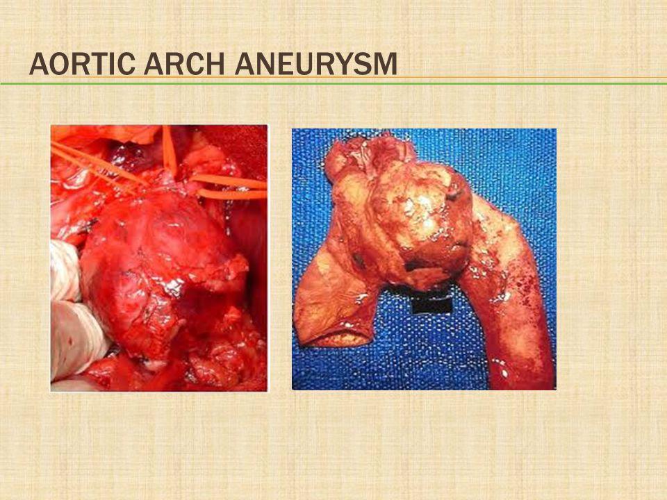 Aortic Arch Aneurysm