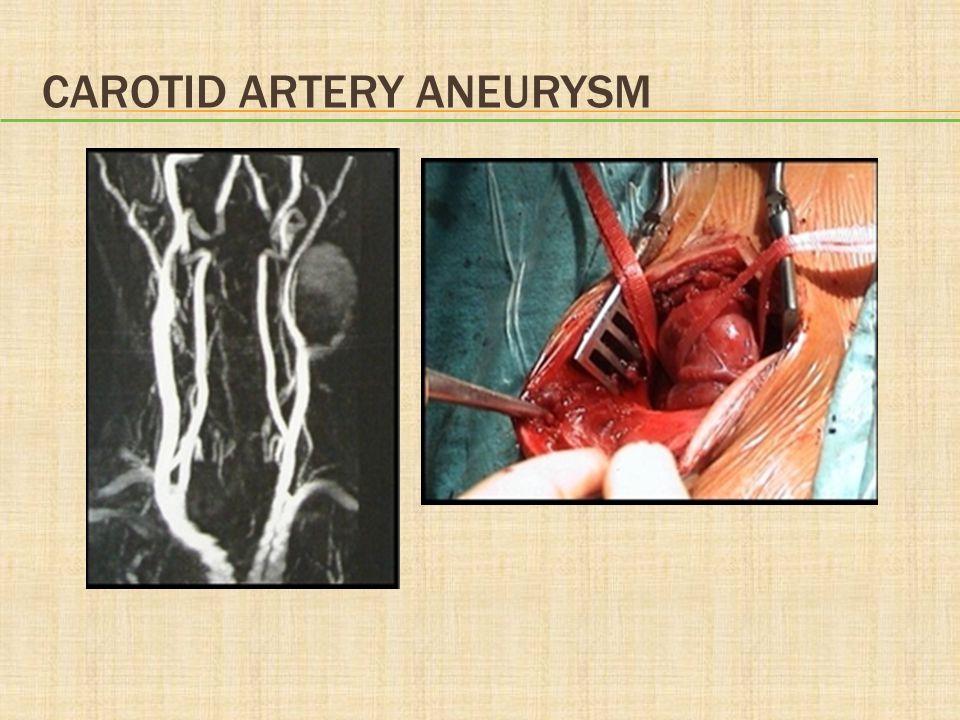 Carotid Artery Aneurysm