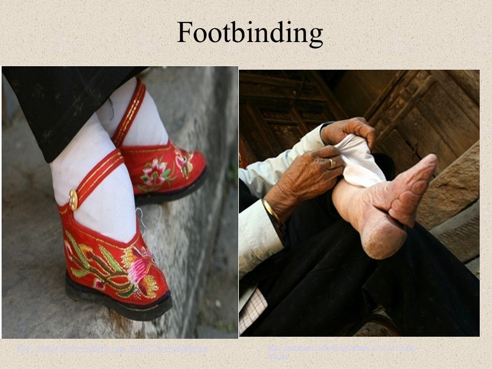 Footbinding http://7uncle.files.wordpress.com/2009/01/footbinding.jpg