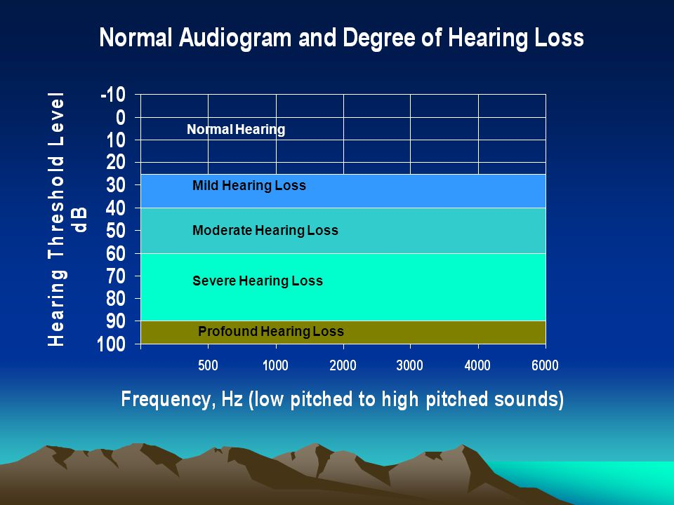 Normal Hearing Mild Hearing Loss Moderate Hearing Loss Severe Hearing Loss Profound Hearing Loss