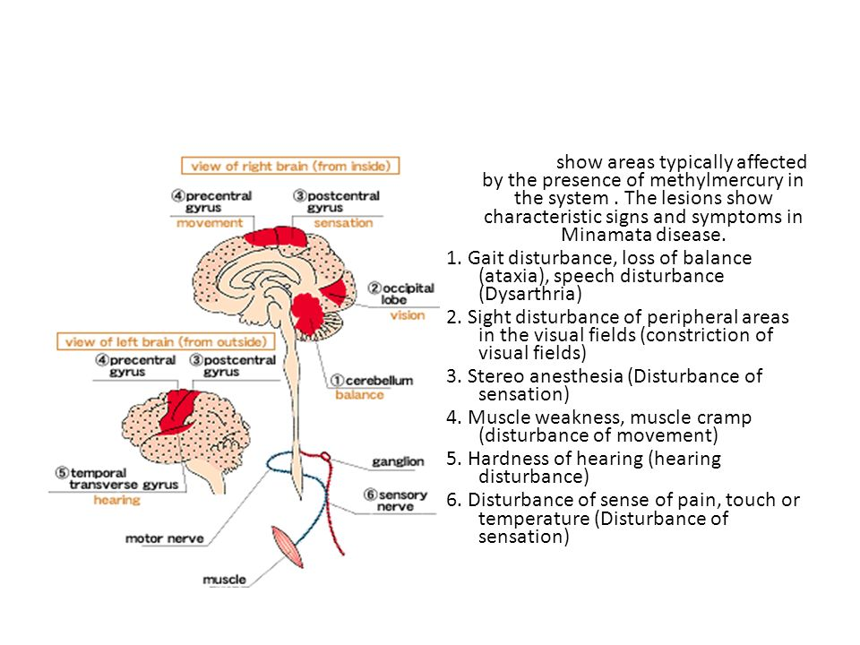 Minamata Disease in the Nervous System