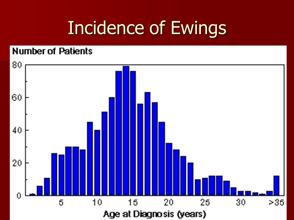 Incidence of Ewings