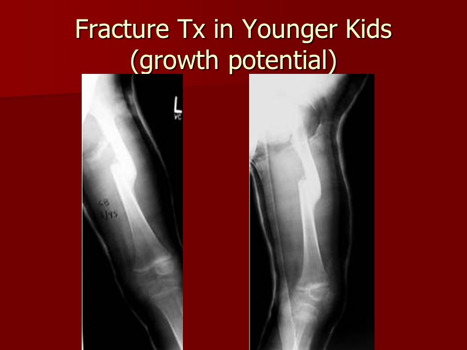 Fracture Tx in Younger Kids (growth potential)