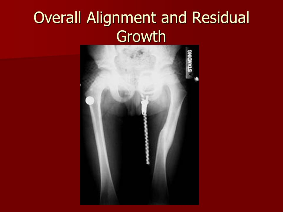 Overall Alignment and Residual Growth