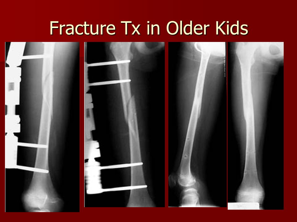 Fracture Tx in Older Kids