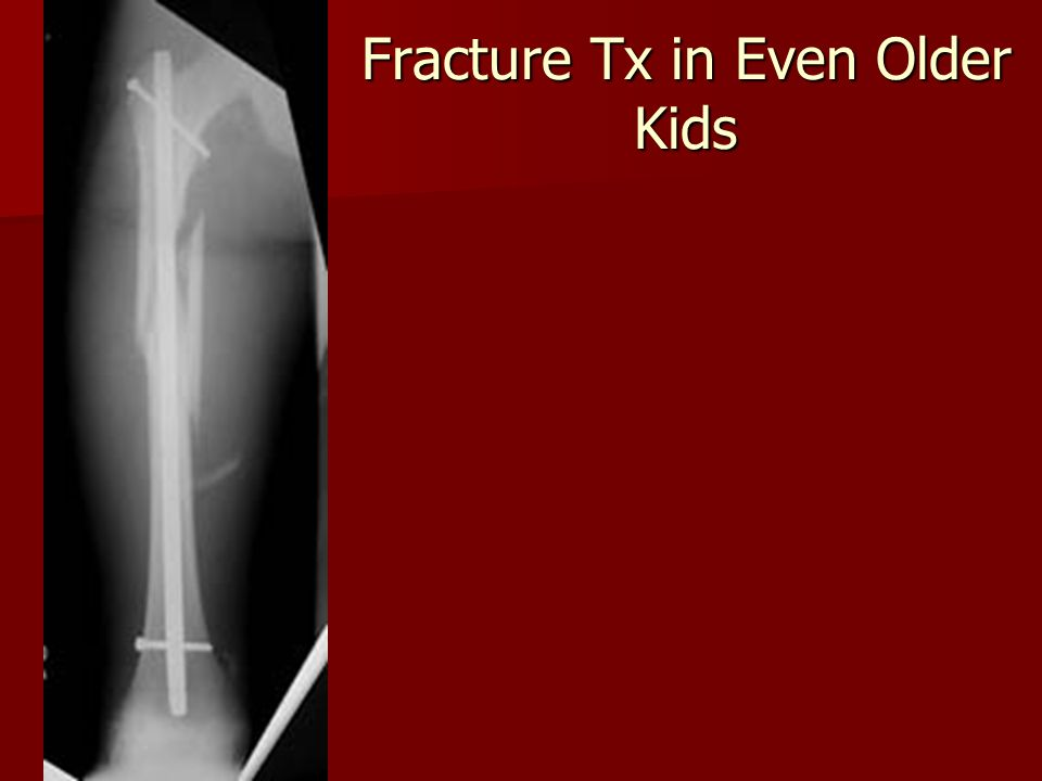 Fracture Tx in Even Older Kids