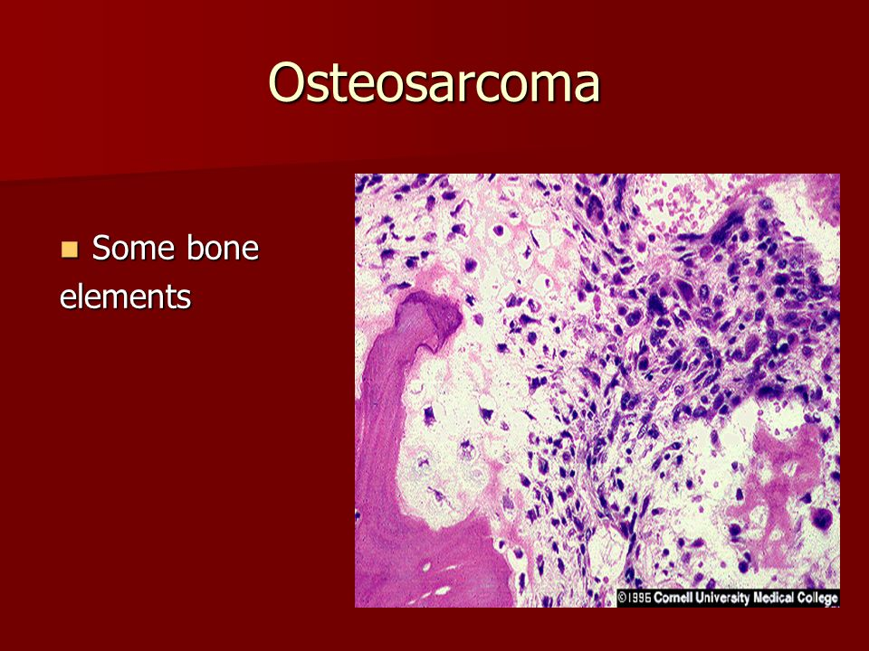 Osteosarcoma Some bone elements
