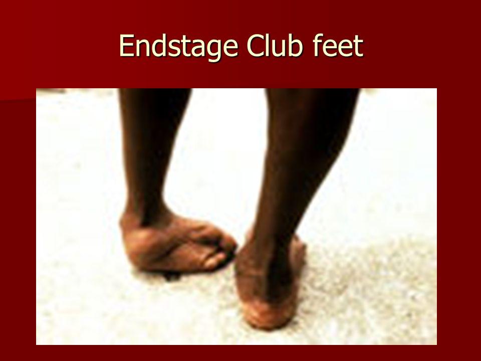 Endstage Club feet
