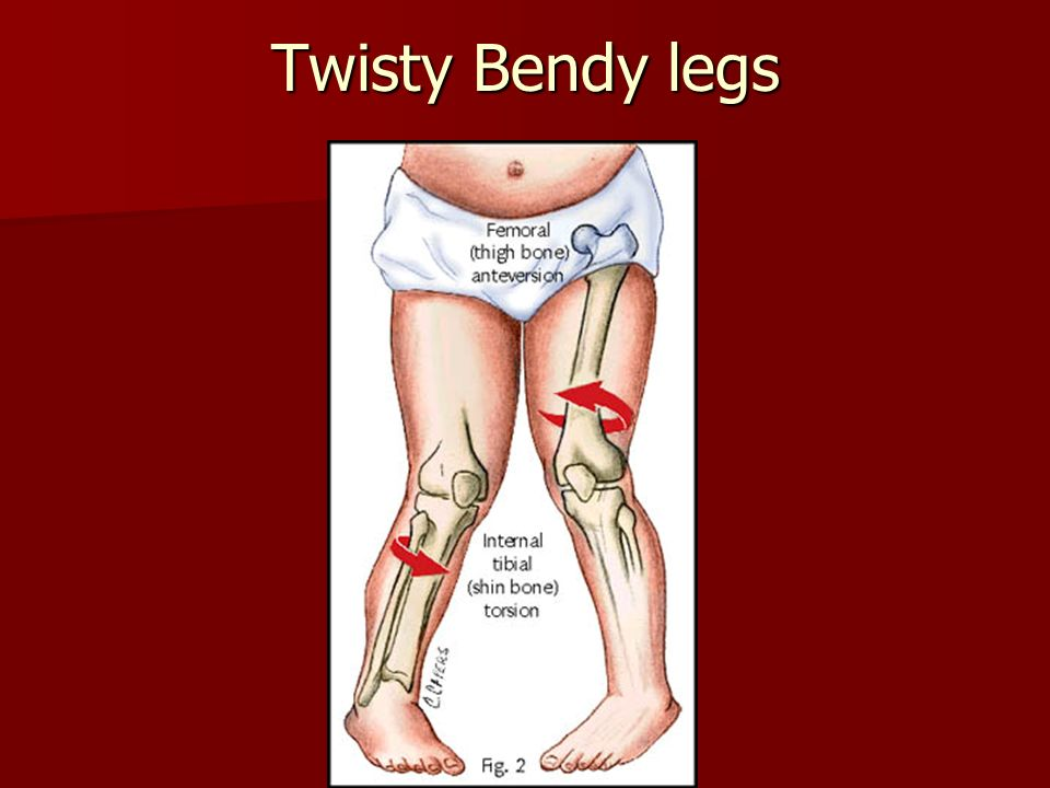 Twisty Bendy legs