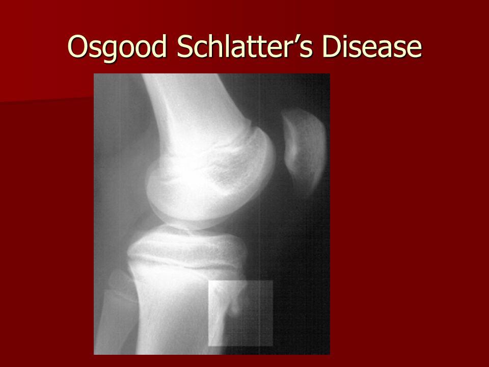Osgood Schlatter's Disease