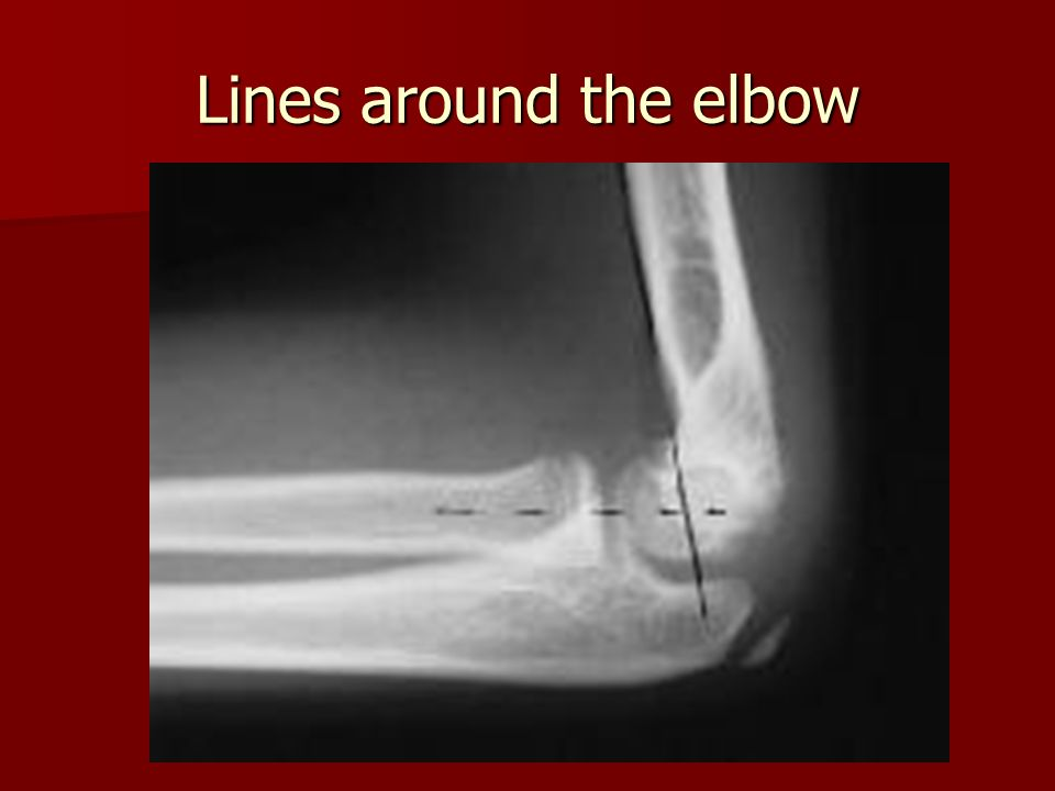 Lines around the elbow