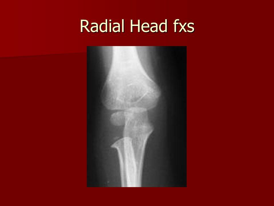 Radial Head fxs