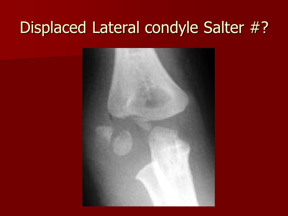 Displaced Lateral condyle Salter #