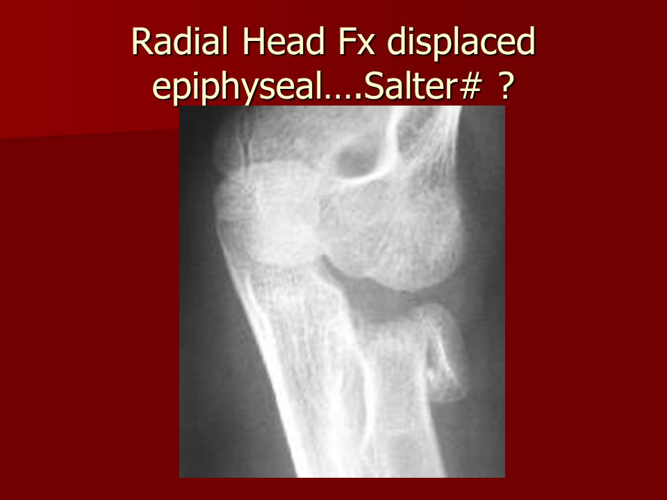 Radial Head Fx displaced epiphyseal….Salter#