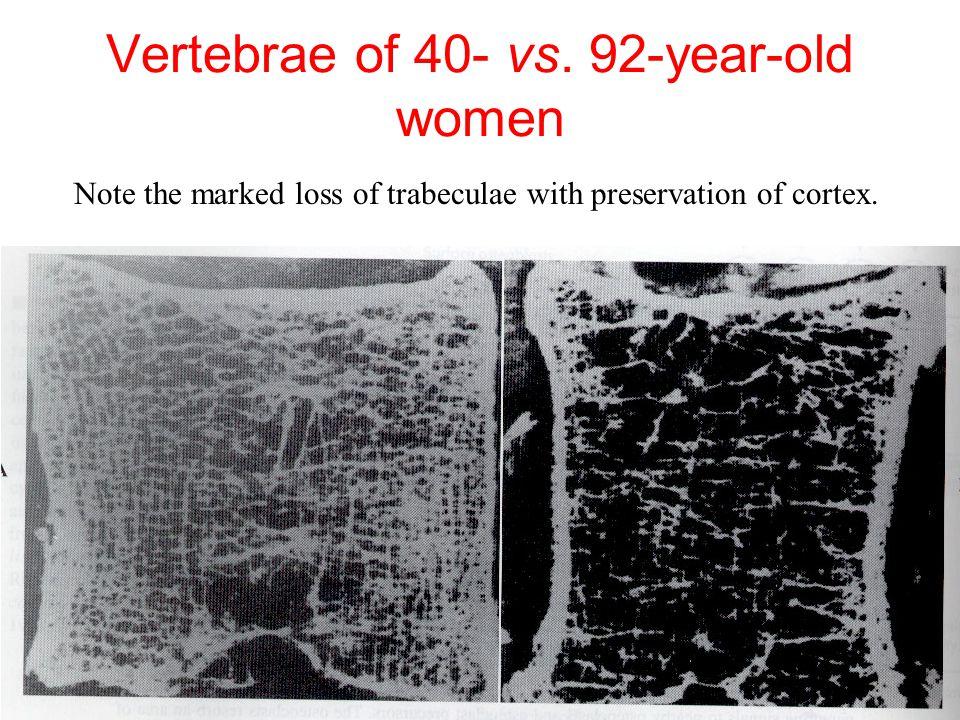 Vertebrae of 40- vs. 92-year-old women