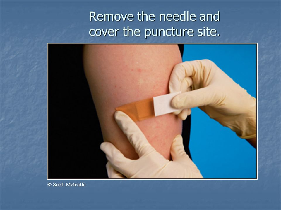 Remove the needle and cover the puncture site.
