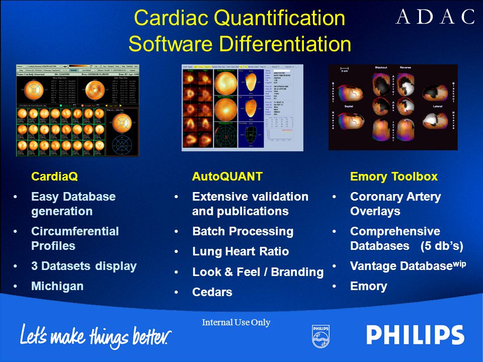 Cardiac Quantification Software Differentiation