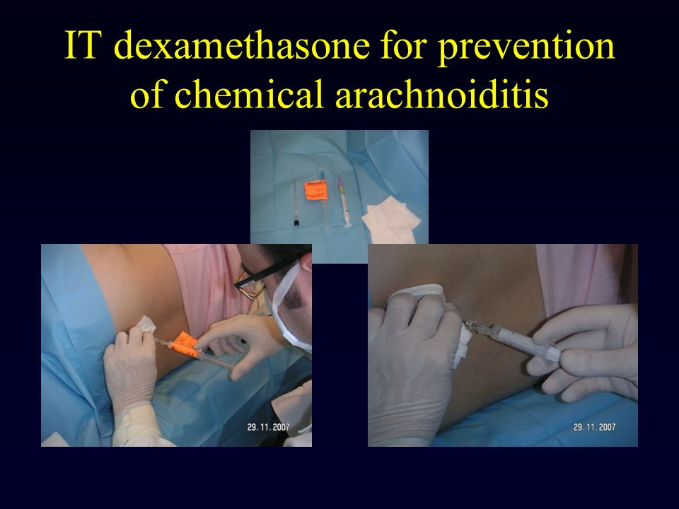IT dexamethasone for prevention of chemical arachnoiditis