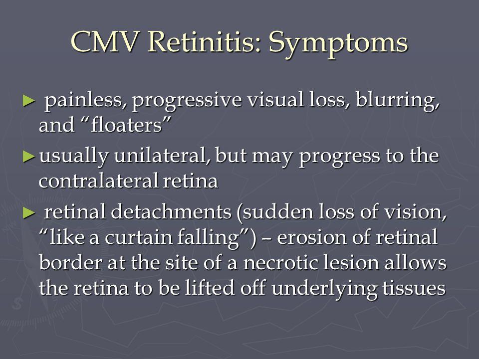 CMV Retinitis: Symptoms