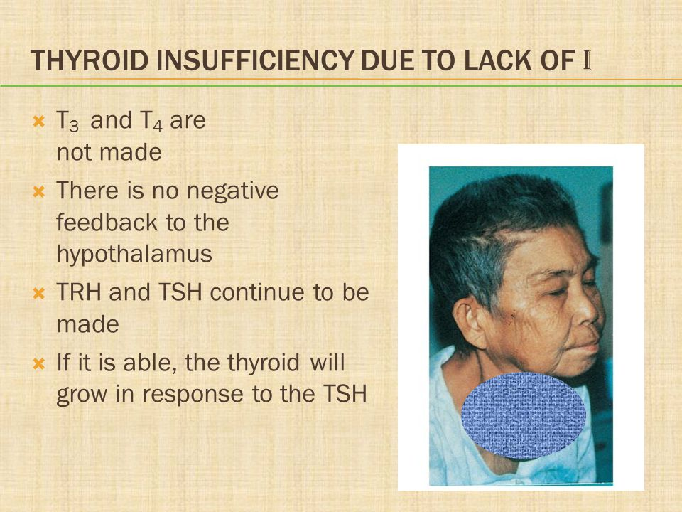 Thyroid Insufficiency Due to Lack of I