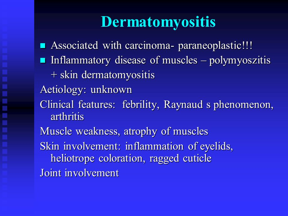 Dermatomyositis Associated with carcinoma- paraneoplastic!!!