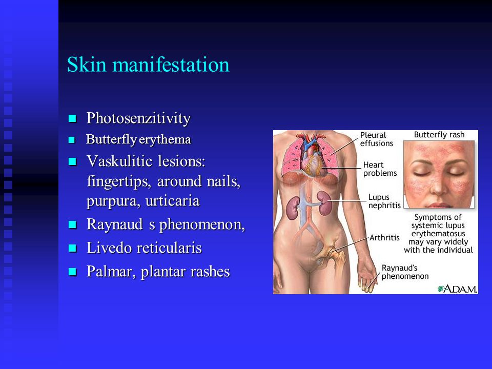 Skin manifestation Photosenzitivity