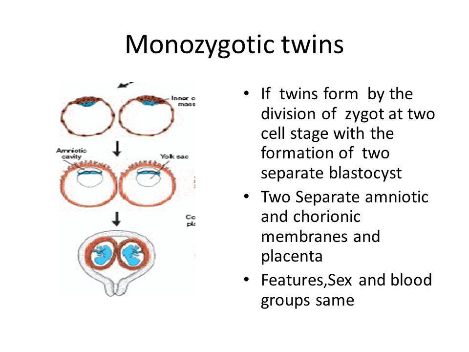 Monozygotic twins If twins form by the division of zygot at two cell stage with the formation of two separate blastocyst.