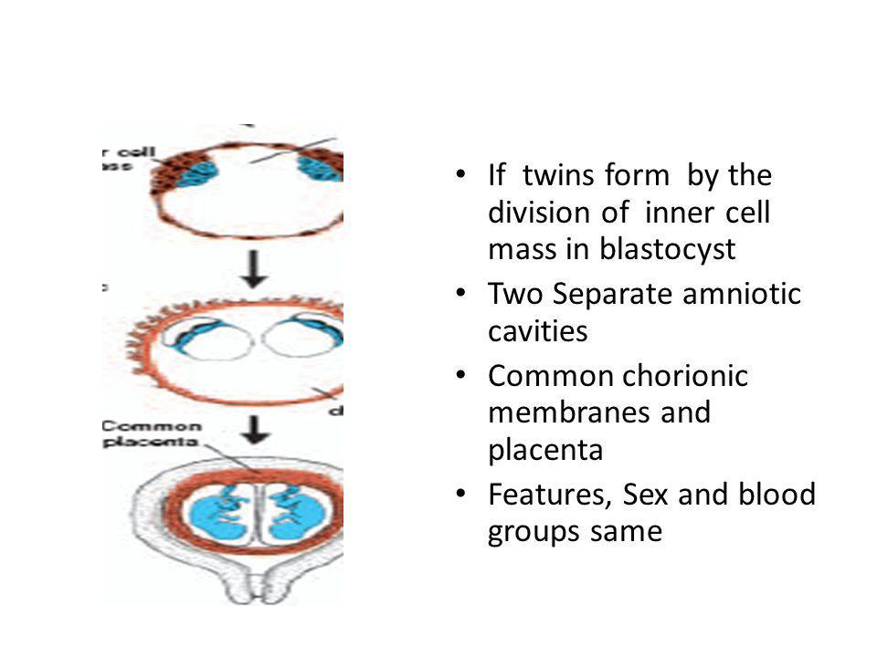 If twins form by the division of inner cell mass in blastocyst