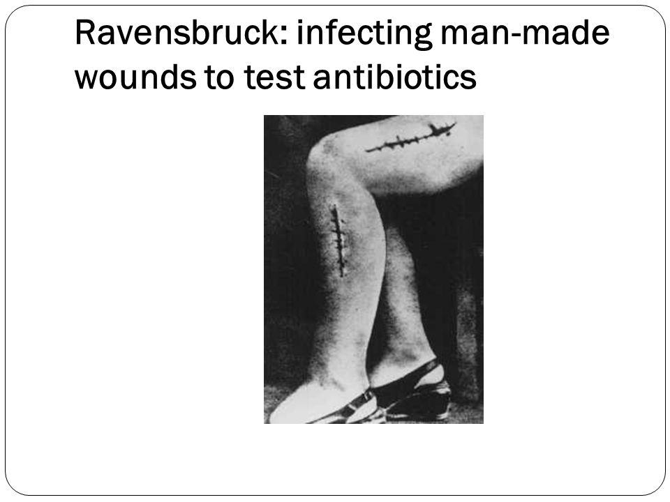 Ravensbruck: infecting man-made wounds to test antibiotics