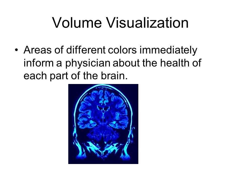 Volume Visualization Areas of different colors immediately inform a physician about the health of each part of the brain.
