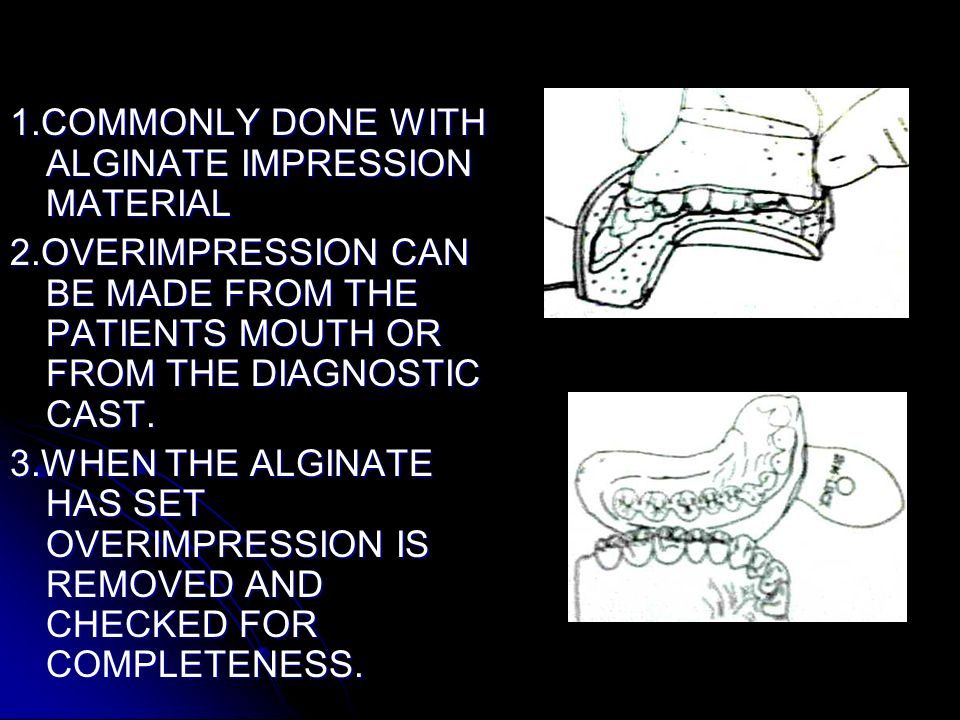 1.COMMONLY DONE WITH ALGINATE IMPRESSION MATERIAL