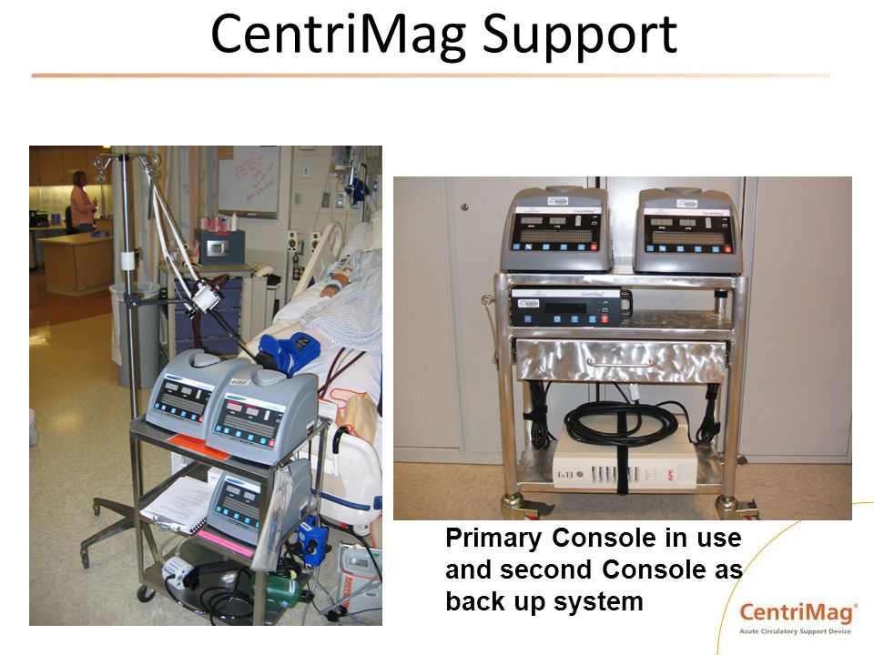CentriMag Support