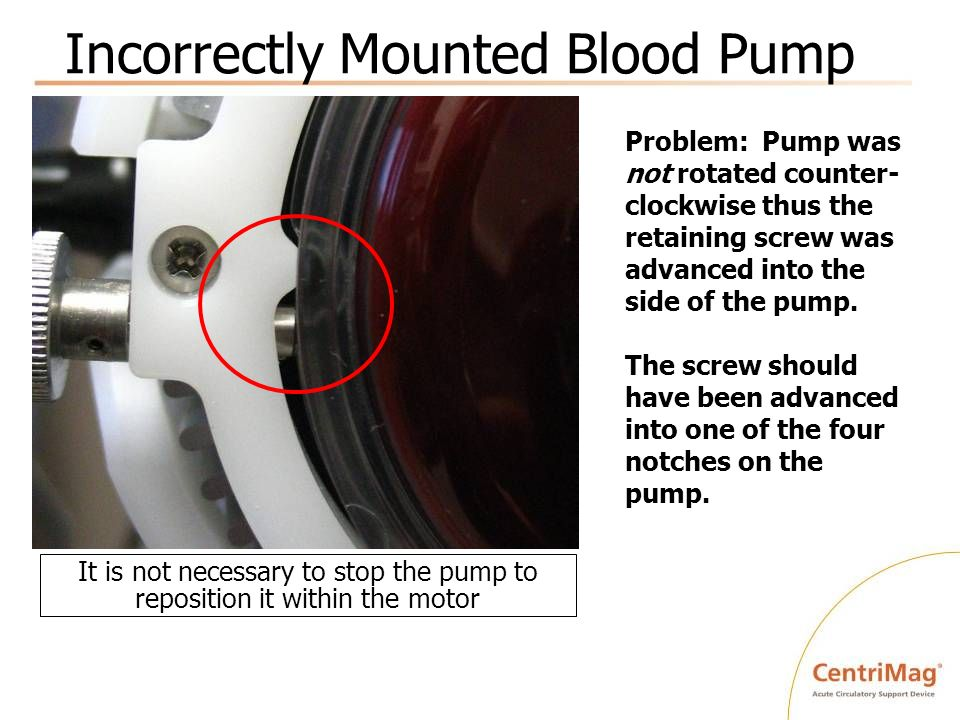 Incorrectly Mounted Blood Pump