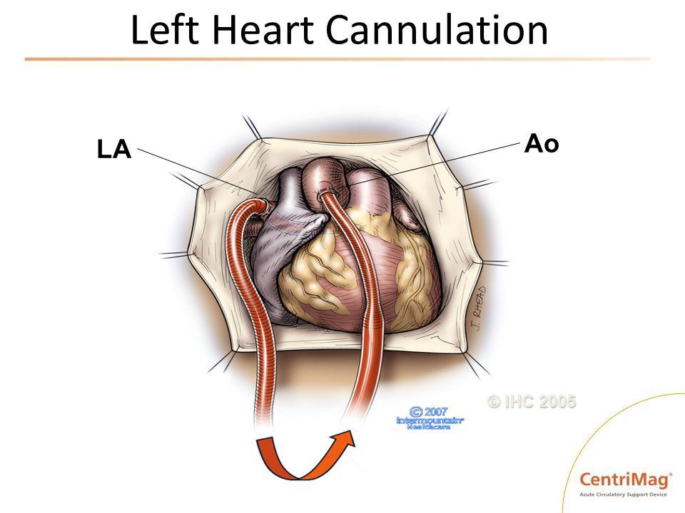 Left Heart Cannulation