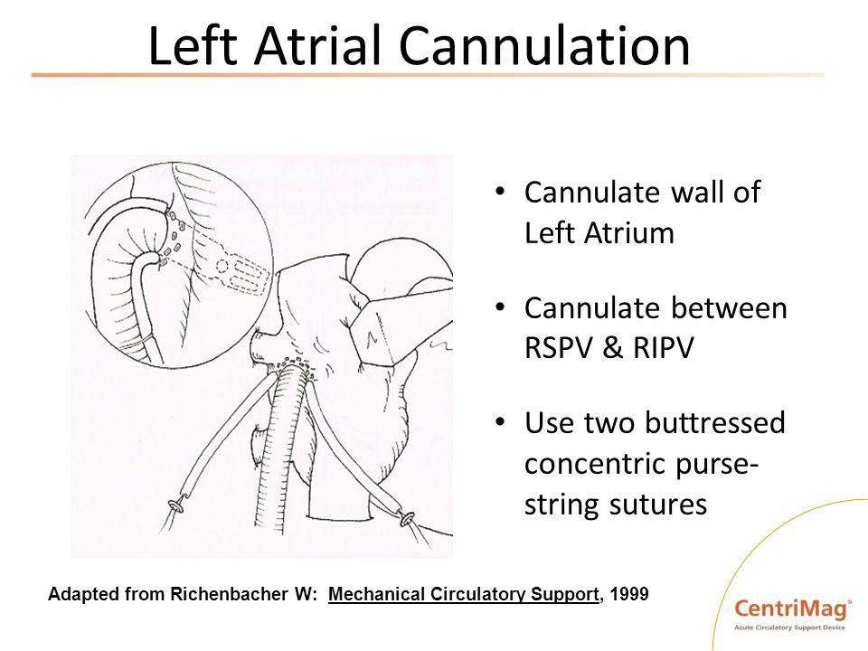 Left Atrial Cannulation