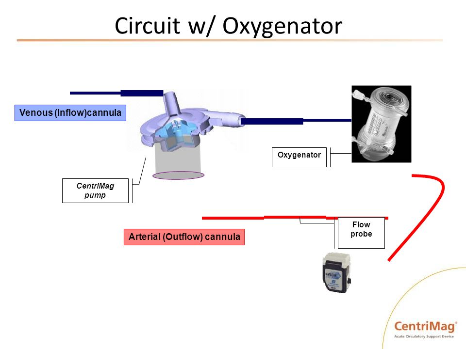Circuit w/ Oxygenator Venous (Inflow)cannula