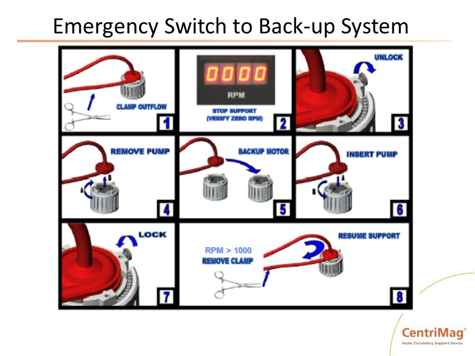 Emergency Switch to Back-up System