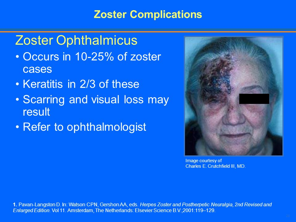 Zoster Ophthalmicus Occurs in 10-25% of zoster cases