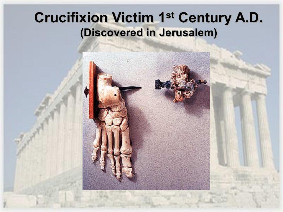 Crucifixion Victim 1st Century A.D. (Discovered in Jerusalem)