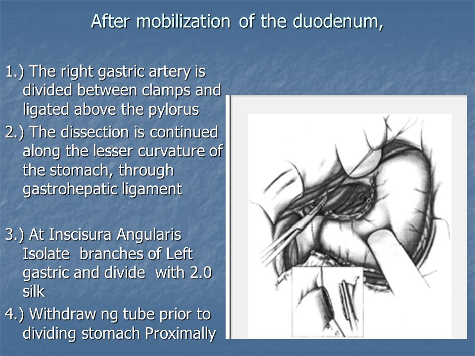 After mobilization of the duodenum,