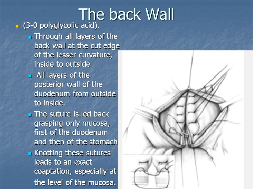 The back Wall (3-0 polyglycolic acid).