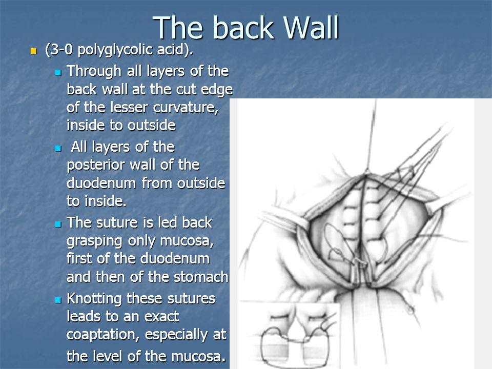The back Wall (3-0 polyglycolic acid).