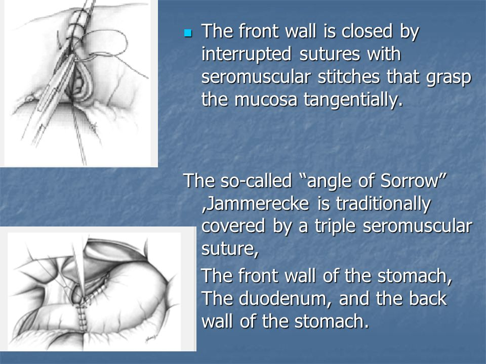 The front wall is closed by interrupted sutures with seromuscular stitches that grasp the mucosa tangentially.