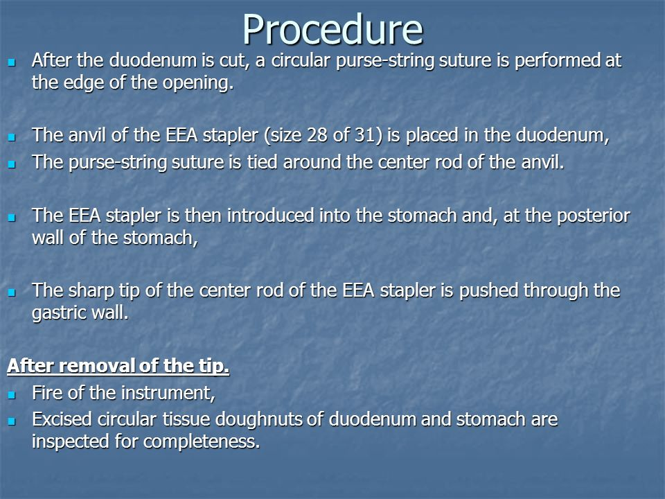 Procedure After the duodenum is cut, a circular purse-string suture is performed at the edge of the opening.