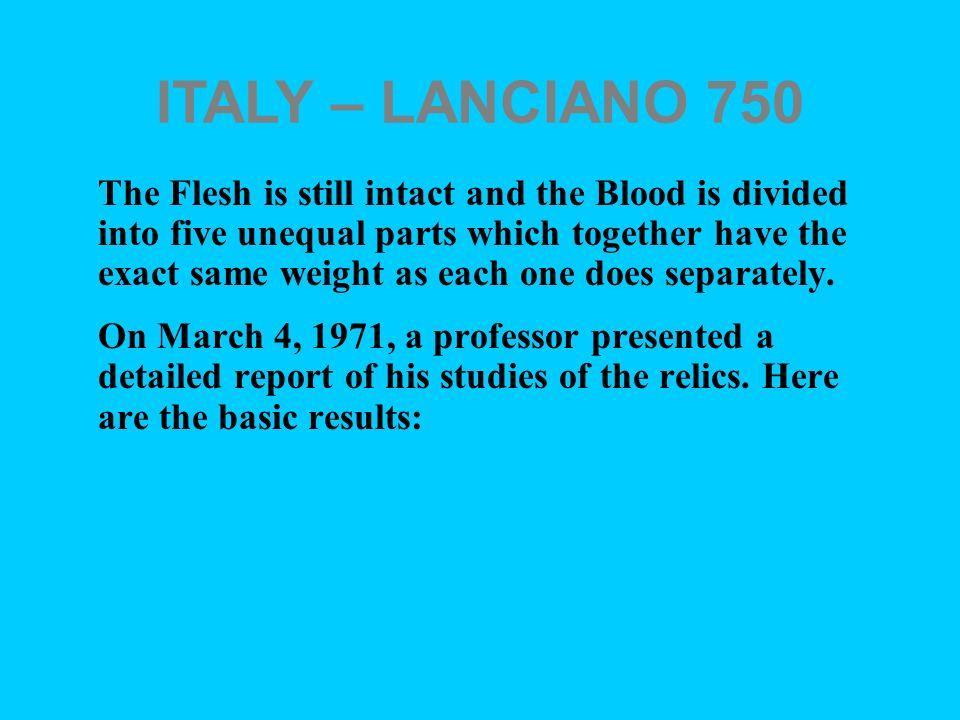 ITALY – LANCIANO 750