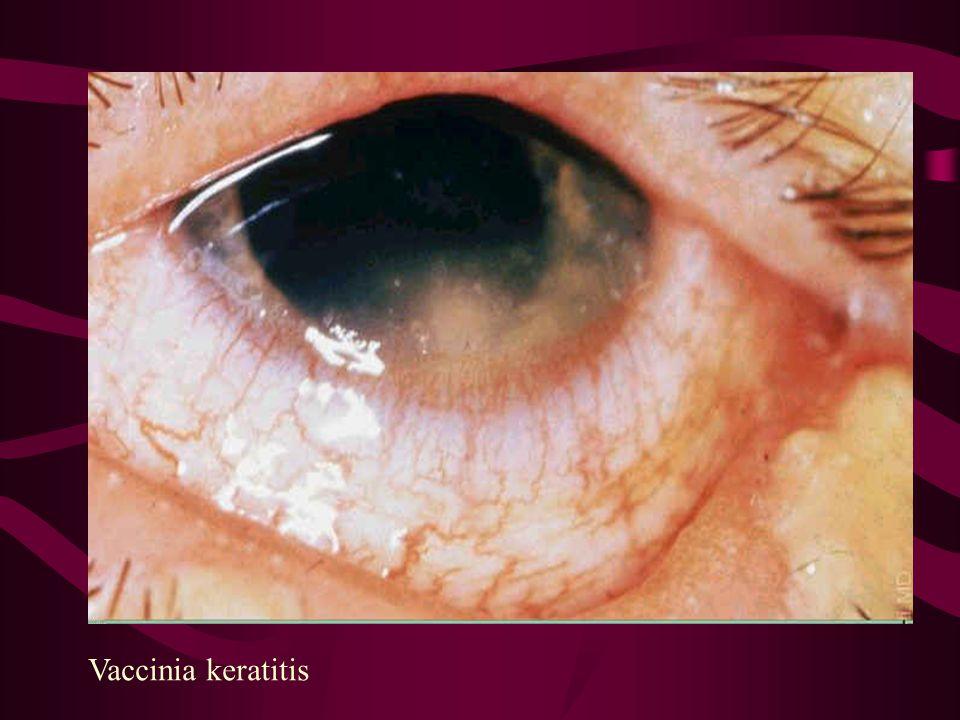 Vaccinia keratitis