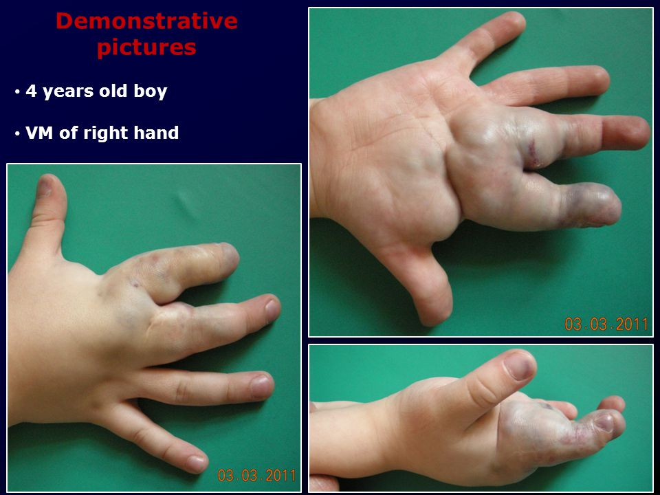 Demonstrative pictures